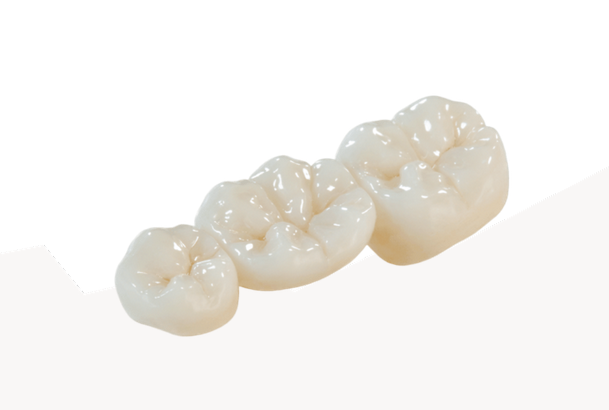 Zirconia Crowns Stomadent Lab Idaho