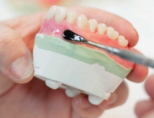 Hard Denture Reline FAQs: