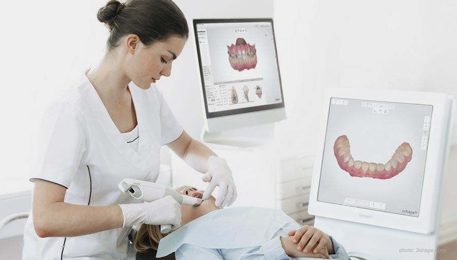 intraoral 3d scan