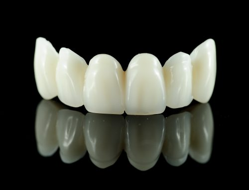 Zirconia Crowns: What Are The Options?