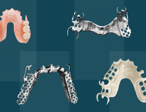 A Guide to Types of Partial Dentures and Costs