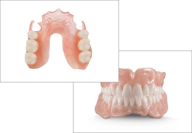 Partial vs Denture