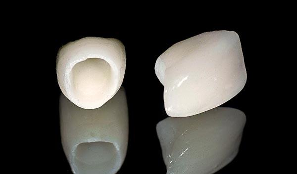 Zirconia Crowns - Free Starter Kit | Stomadent Dental Lab