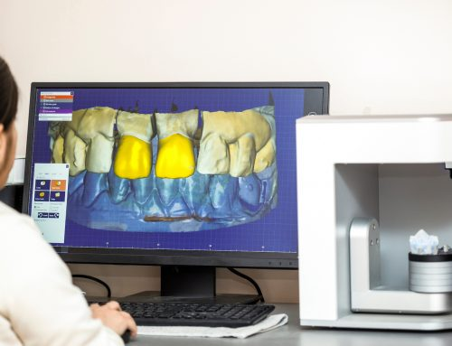 How 3D Printed Dentures Are Made