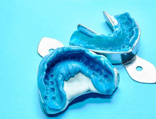 Comparing Types of Dental Impression Materials