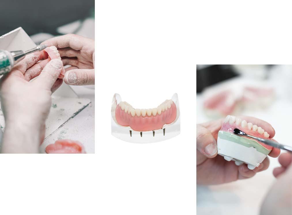 Denture Experts